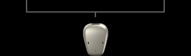 Cochlear Baha System